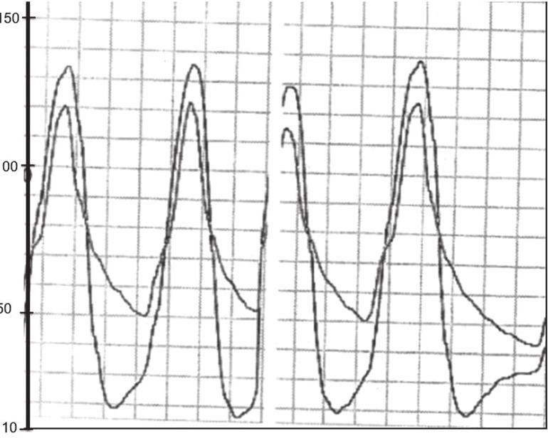 17 Figure 8. Hemodinamic assesssment of severe aortic regurgitation by simultaneous measurement of aortic and left ventricular pressures. Figure 9.