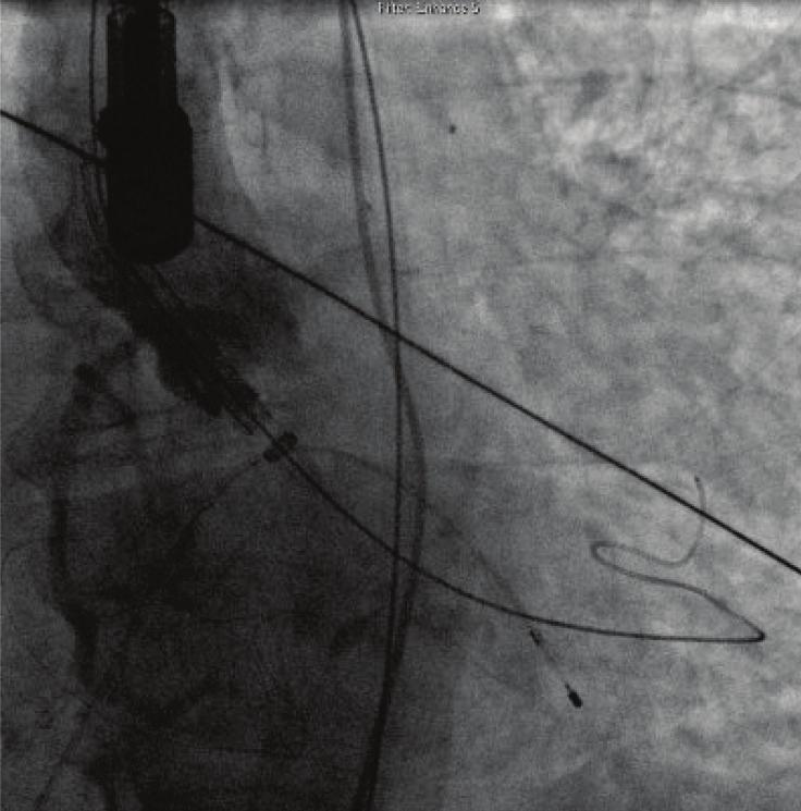 A severe pulmonary hypertension of 85 mmhg was also found. Cardiac catheterization showed patent coronary artery bypasses with no new significant disease on other coronary arteries.